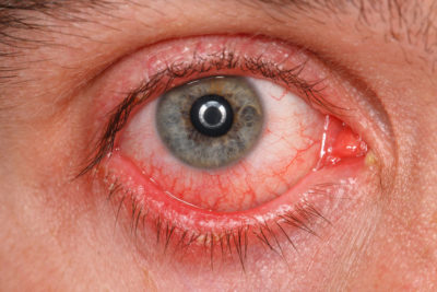 Illustration of The Use Of Contact Lenses In Someone Who Is Allergic To Antibiotics?