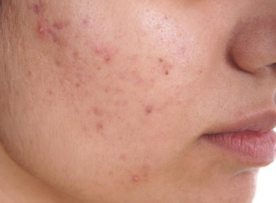 Illustration of Use Of Water To Treat Acne?