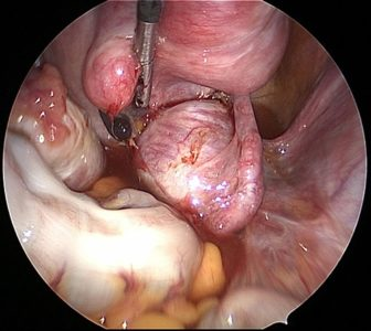 Illustration of Prevents Hydrosalping Cysts From Recurring?