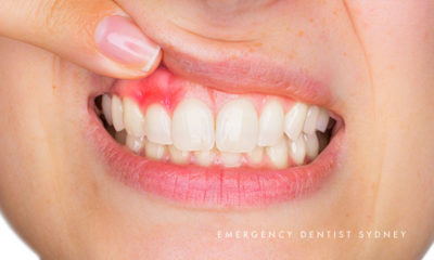 Illustration of Causes And Solutions For Sore And Sore Gums?