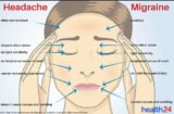 Continuous Headaches Up To The Neck Of A 46 Year Old Woman?