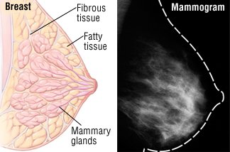 Illustration of Mammography Examination Results On The Breast?