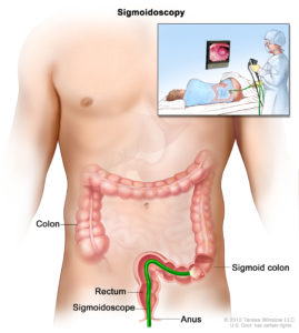 Illustration of Lower Abdominal Pain, A Sign That Your Intestines Have Decreased?