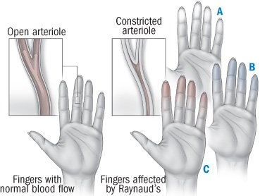 Illustration of Hands Often Hurt Every Time They Are Exposed To Cold Weather?