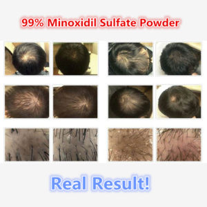 Illustration of Use Of Minoxidil For Hair Loss?