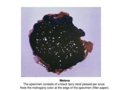 Illustration of The Cause Of Black Stool?