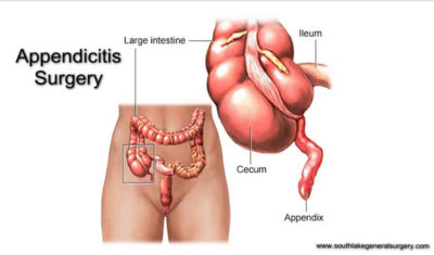 Illustration of Treatment Of Appendicitis With A Ruptured Appendix?