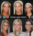 The Use Of Laser Therapy To Remove Burn Scars?