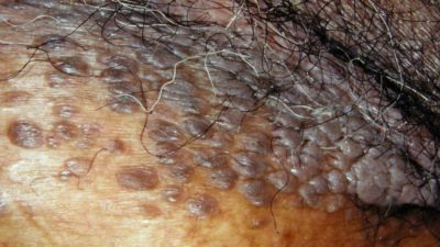 Illustration of Causes Of Spots Such As Moles In The Genital Area?