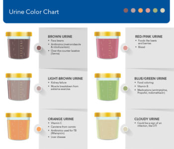 Illustration of Causes Of Red Urine Color?