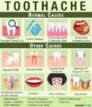 Limitations On The Consumption Of Toothache Relievers?