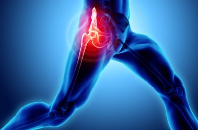 Illustration of Hip Pain To The Left Knee?