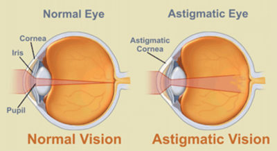 Illustration of The Value For The Eye Is Minus?
