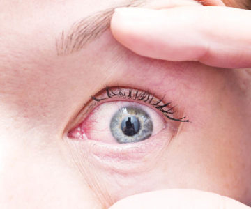 Illustration of The Left Eye Is Itchy, Watery And Secretes Dirt?