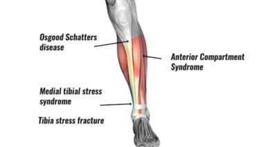 Illustration of The Shins Of The Knee Are Painful For 3 Weeks?