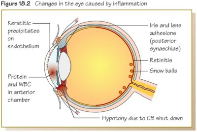 Illustration of Pain In The Back Of The Eye On Glancing And Headache?