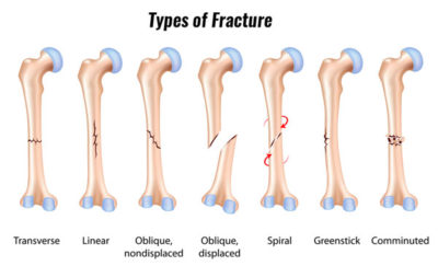 Illustration of The Length Of Time To Heal A Shin Fracture?