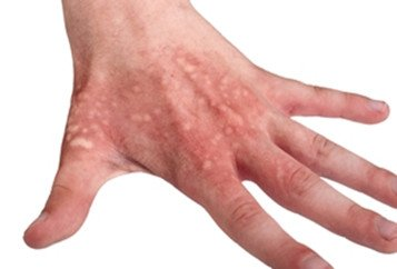 Illustration of Blisters Are Not Caused By Burns?