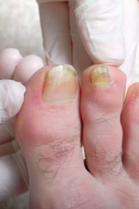 Illustration of Skin And Nails Turn Blackish Yellow Color?