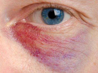 Illustration of The Eye Is Suddenly Swollen And Bluish Red?