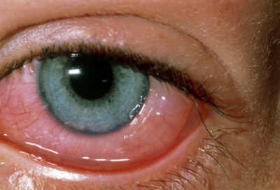 Illustration of Swollen Eyes And Redness Due To Allergies?