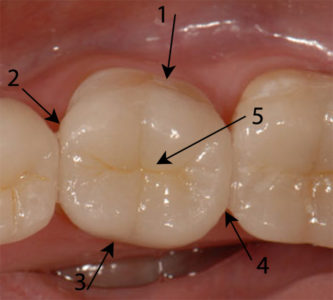 Illustration of Overcome Brittle Front Teeth?