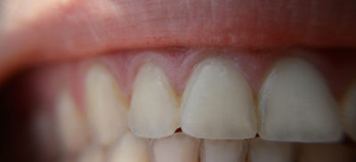 Illustration of Long-term Effects Of Using Teeth Whitener?