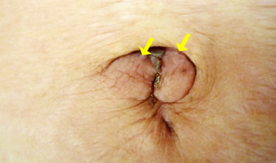 Illustration of A Lump On The Stomach And A Reddish Yellow Discharge?