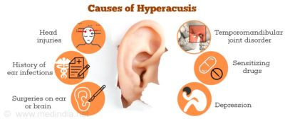 Illustration of Natural Ear Hyperacusis After Taking Medication?