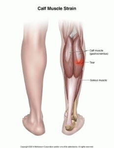 Illustration of Feet Around The Knee Area To The Calf Like Being Electrocuted Suddenly?