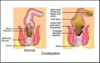 Illustration of Overcoming Defecation Is Not Smooth But The Stomach Is Not Heartburn?