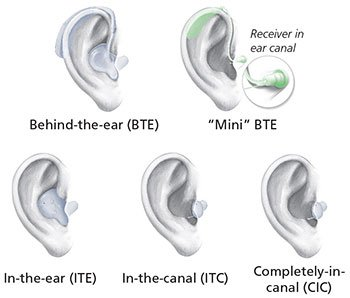 Illustration of Can Hearing Aids Be Installed For Elderly Hearing Loss Sufferers?