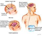 Duration Of Tube Insertion In People With Hydrocephalus?