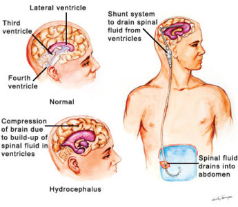 Illustration of Duration Of Tube Insertion In People With Hydrocephalus?