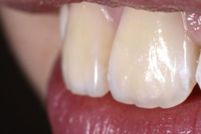 Illustration of Overcoming Uneven Tooth Color?
