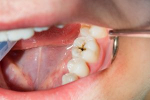 Illustration of The Danger Of Cavities If Not Addressed?