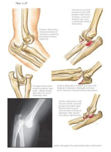 Illustration of Overcoming Hand Elbow Dislocation?