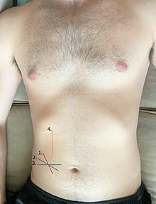 Illustration of Overcoming The Bleeding Appendix Surgery Stitch Marks?