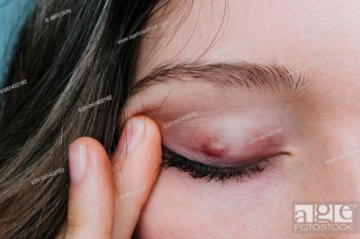 Illustration of A Stain On The Eyelid, Enlarged And Festering?