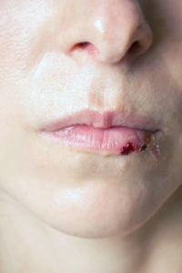 Illustration of Lips Swelling And Bleeding After A Sports Injury?
