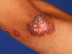 Illustration of Foot Sores That Don't Heal In People With Cutaneous Tuberculosis?