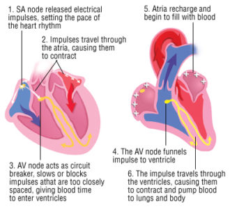 Illustration of Causes And Dangers Of Cardiac Arrhythmias?