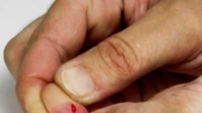 Illustration of The Skin Around The Cut On The Child's Finger Is Swollen And Hot?