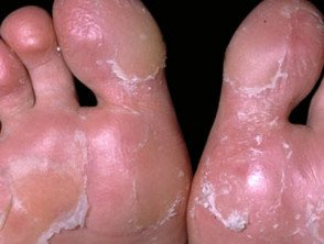Illustration of Cracked Feet With Sweaty Hands?