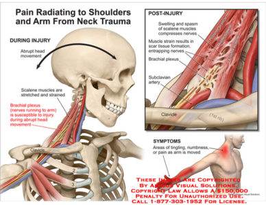 Illustration of Pain In The Shoulder That Radiates To The Head And Arms?