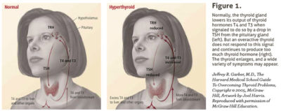 Illustration of Overcoming The Thyroid Gland Getting Swollen During Pregnancy?