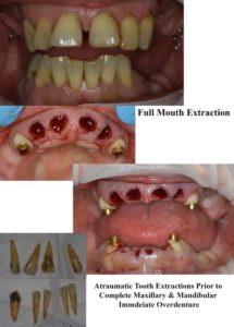 Illustration of The Process Of Tooth Growth After Wisdom Tooth Surgery?
