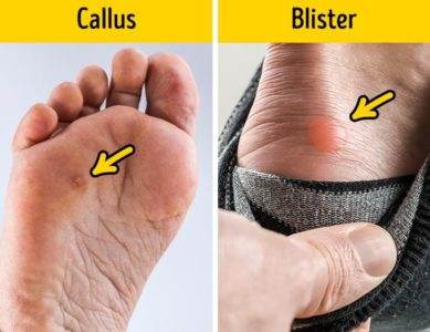 Illustration of How To Deal With Calluses That Have Become Watery Sores?