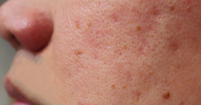 Illustration of The Face Feels Itchy And Uneven With Enlarged Pores?