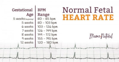 Illustration of The Normal Fetal Heart Rate Is 8 Weeks?